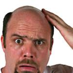 baldness-150x150