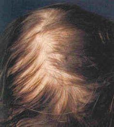 scalp - telogen effluvium