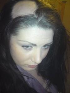 female hair loss - androgenic hair loss