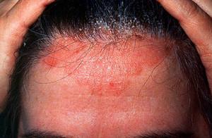 scalp condition seborroeic dermatitis scalp clinic